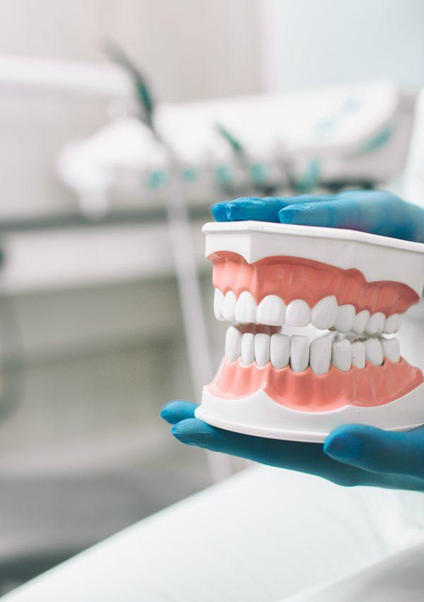Mãos de um cirurgião-dentista segurando um macromodelo ortodôntico